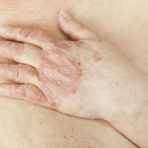 Antiadalimumab antibodies show limited utility in psoriasis