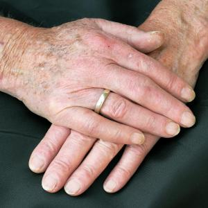 Coronary plaque highly prevalent in psoriatic arthritis patients
