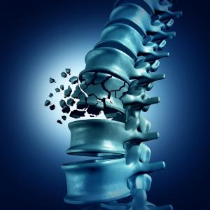The Future of Osteoporosis Management