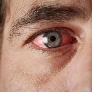 Intermediate uveitis patients achieve good visual outcomes despite complications