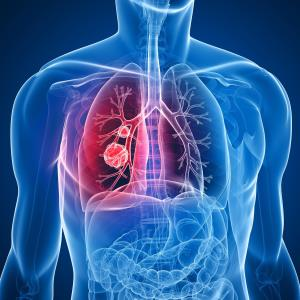 Inflammatory indices help gauge efficacy of atezolizumab against NSCLC