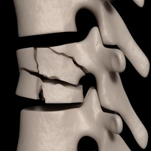 Delayed denosumab treatment may up vertebral fracture risk
