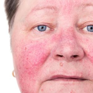 Ingenol mebutate useful for treating actinic keratosis