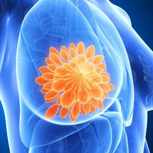 Ribociclib-fulvestrant combo improves PFS in HR+/HER2- advanced breast cancer