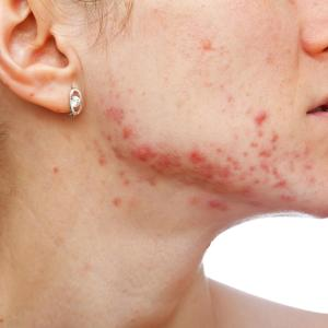 Pulse dye laser efficacy in acne erythema therapy inconclusive