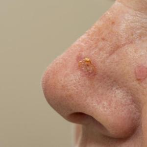 Actinic keratosis risk greater in taller people