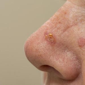 Topical calcipotriol and 5-fluorouracil combination effective against skin cancer precursor