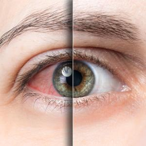 Ocular surface discomfort likely after paclitaxel treatment