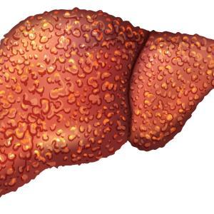 二维剪切波弹性成像评估慢性乙型肝炎肝纤维化临床应用指南