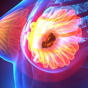 SNPs likely to improve breast cancer risk prediction