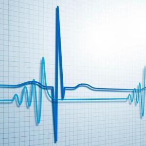 Janus kinase inhibitors do not influence cardiovascular risk in RA