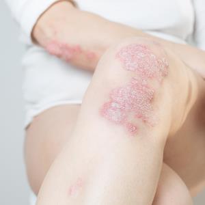 Upadacitinib may benefit patients with PsA