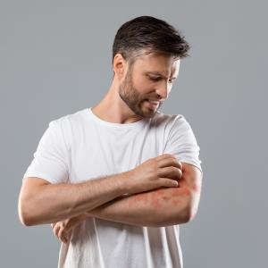 Abrocitinib trumps dupilumab for itch relief in AD