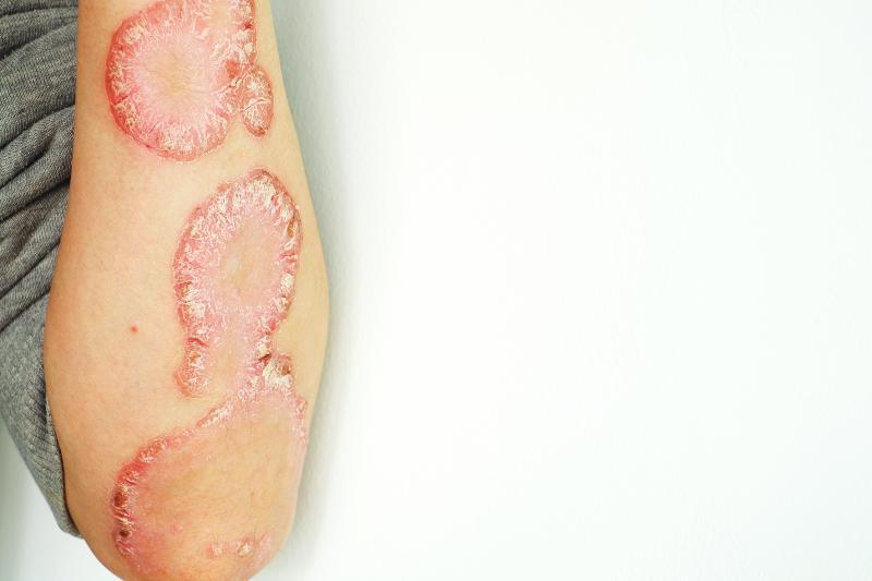 psoriasis wie übertragen arthritis basistherapie.jpg