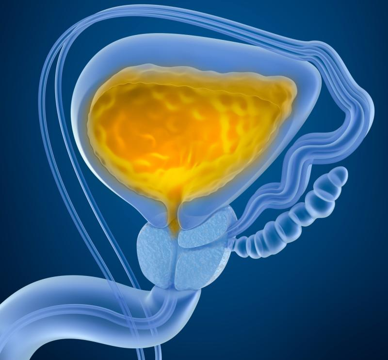 Treatment With 5 Ce B1 Reductase Inhibitors Improves Disease Specific Survival Following A Diagnosis Of Bladder Cancer Suggests A Recent Study