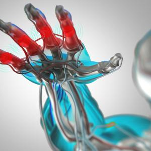 Hydroxychloroquine on par with placebo in reducing symptoms of hand osteoarthritis
