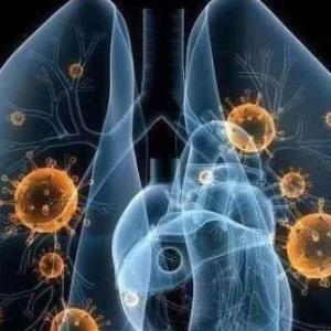 卫健委印发《新型冠状病毒感染的肺炎诊疗方案(试行第五版)》