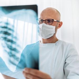 Nintedanib may spare lung in COVID-19