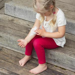 Probiotics may reduce SCORAD, steroid requirement in children with atopic dermatitis