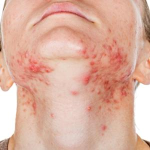 Isotretinoin treatment improves depression symptoms in acne patients