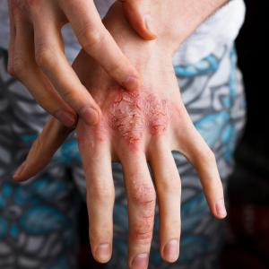 New topical agents on the horizon for eczema treatment