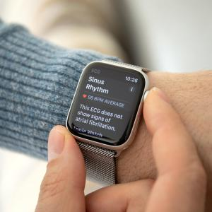Smartwatch may help detect irregular heart rate