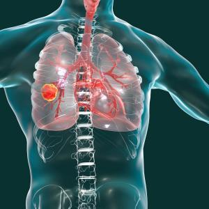 'PACIFIC regimen' shows long-term survival benefit with durvalumab in advanced NSCLC