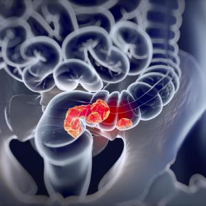 Oxaliplatin-containing ACT may provide survival benefits in advanced rectal cancer