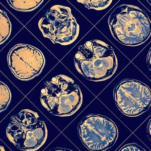 Diffuse white matter abnormalities predict cognitive, language weaknesses in preemies