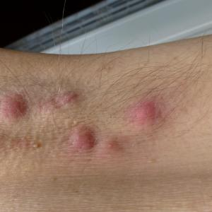 Clindamycin shows promise as alternative treatment to antibiotics in hidradenitis suppurativa