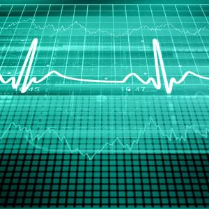 Pulse pressure linked to long-term stroke outcomes among older patients