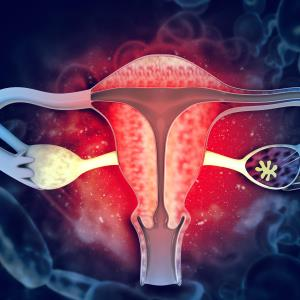 Intraperitoneal paclitaxel-cisplatin therapy does not prolong survival in stage III ovarian cancer