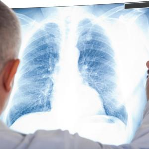 Tezepelumab improves lung function in severe asthma