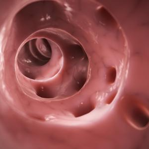 Mesalazine not beneficial in preventing diverticulitis recurrence