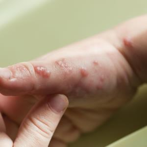 Gel from tree bark: First effective treatment for epidermolysis bullosa