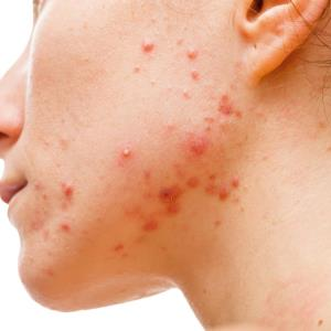 Management of acne vulgaris: An update