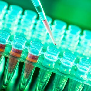 Fever, loss of smell predict COVID-19 in patients with negative RT-qPCR result