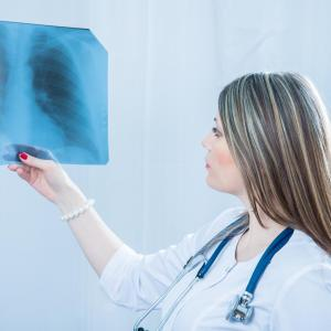 Bedaquiline, delamanid both effective against multidrug-resistant tuberculosis