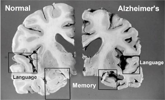 dementia-brain