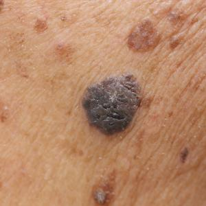 Self-evaluation strongly predicts need for psycho-oncological support in melanoma