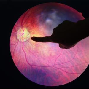 Perceived barriers to diabetes self-management tied to diabetic retinopathy risk
