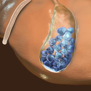 Ursodeoxycholic acid may prevent post-gastrectomy gallstones in gastric cancer