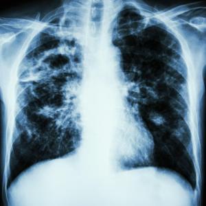 S100A4 level predicts progression, mortality in idiopathic pulmonary fibrosis