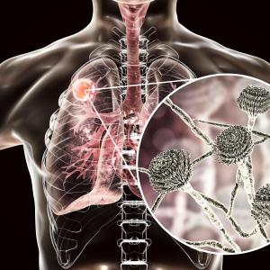Severe influenza tied to increased invasive pulmonary aspergillosis risk