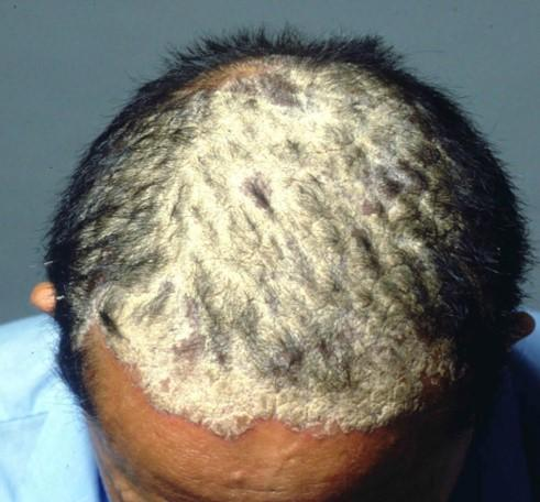 Psoriasis of the scalp