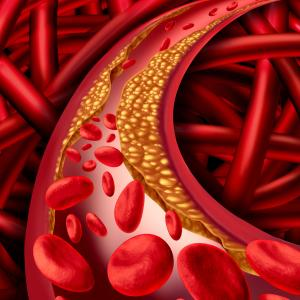 HbA1c tied to coronary artery disease risk