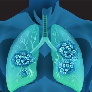 eXalt3: Ensartinib trumps crizotinib in ALK+ NSCLC