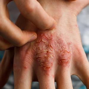 Biologic treatments for psoriasis protect against COVID-19 hospitalization