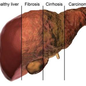 Study reveals biomarker for advanced liver fibrosis in patients with NAFLD