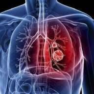 公共场所新型冠状病毒感染的肺炎卫生防护指南